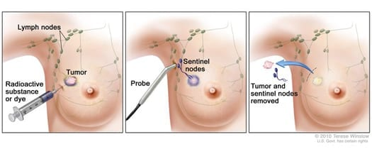 Sentinel Lymph Node Biopsy was originally published by the National Cancer Institute