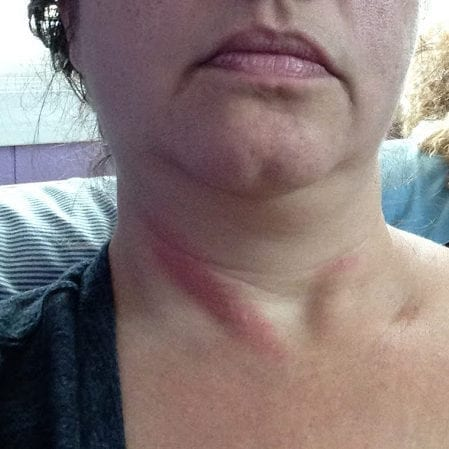 It's hard to work when it feels like a rope burn down the side of my neck