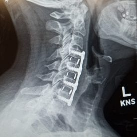Herniated Discs, Bone Spurs & Pinched Nerves