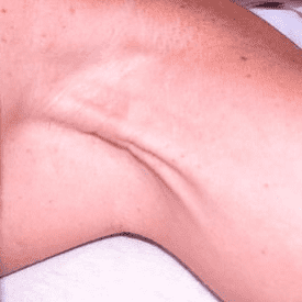Axillary cording and Myofascial Scarring