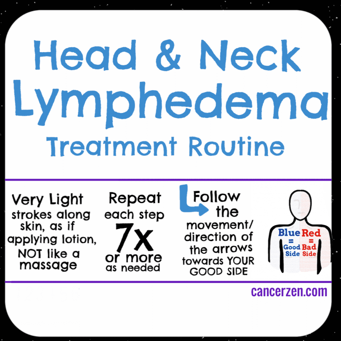 Head and Neck Lymphedema Treatment
